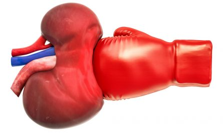 Kidney with boxing glove